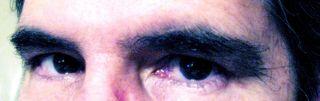 Hairy eyebrows